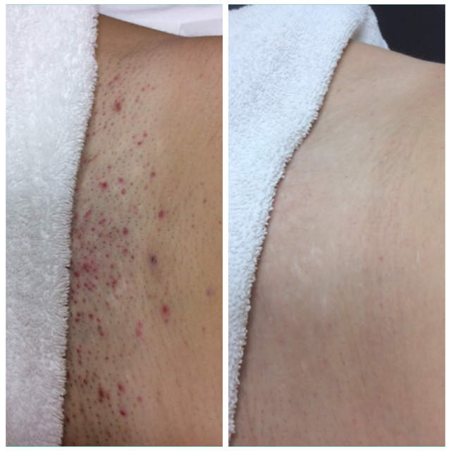 Clarite Laser Medical Esthetics