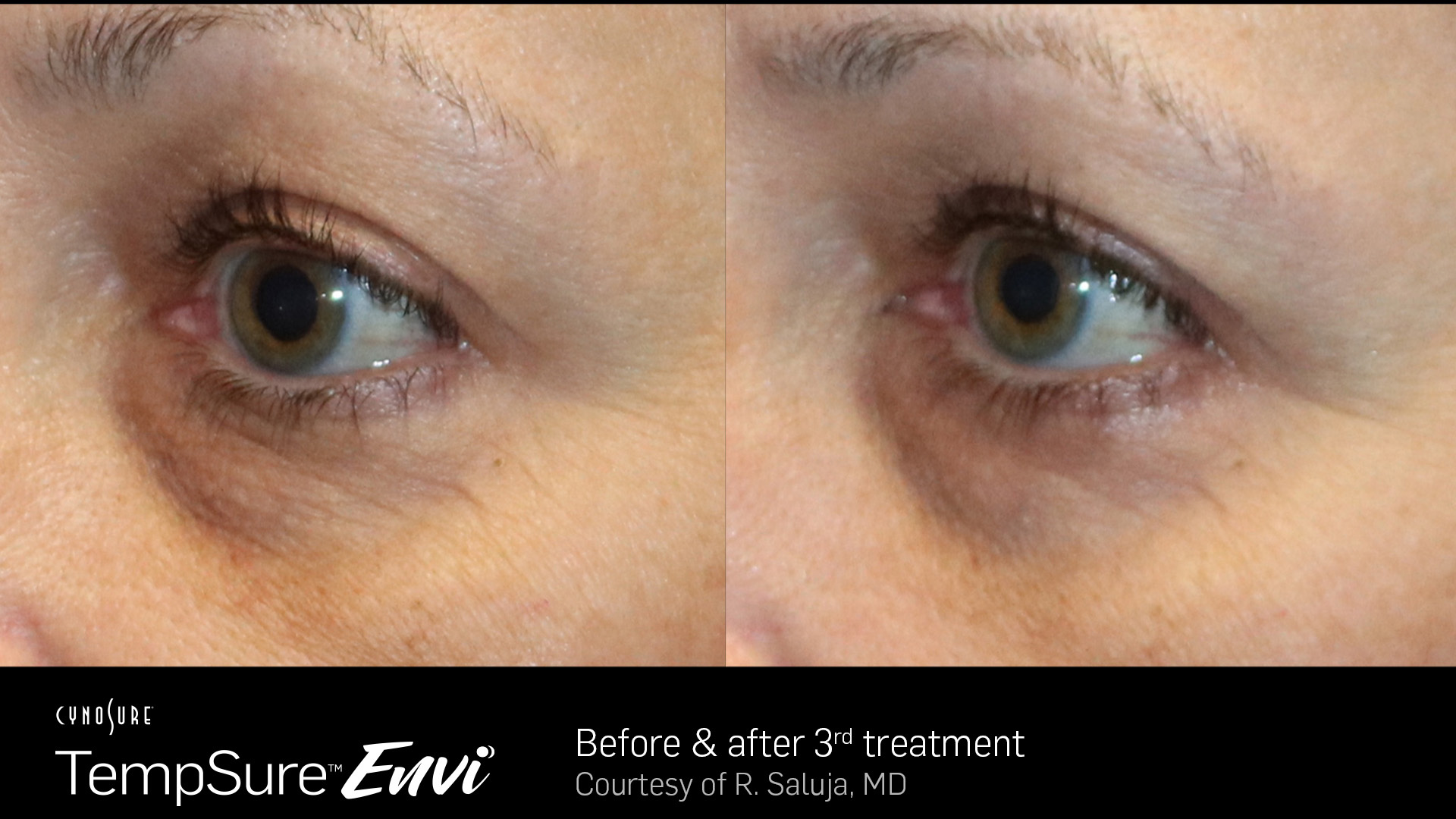 Tempsure™ Envi Before After example images